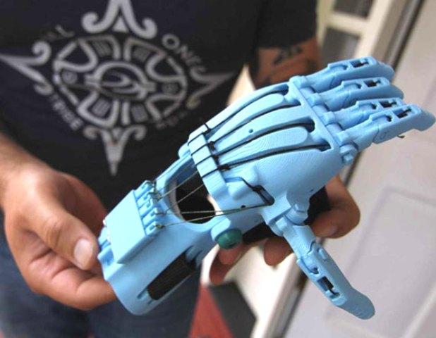 پروتز دست با چاپ سه بعدی